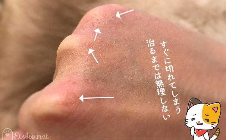 手の甲にたくさんの切り傷ができている